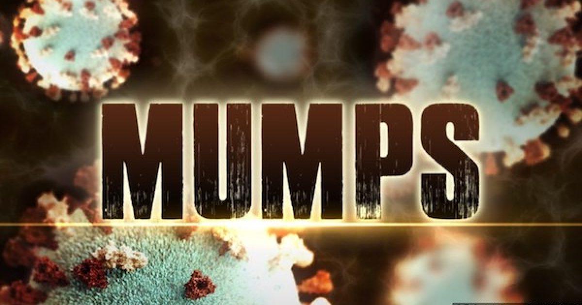 Mumps detention centers